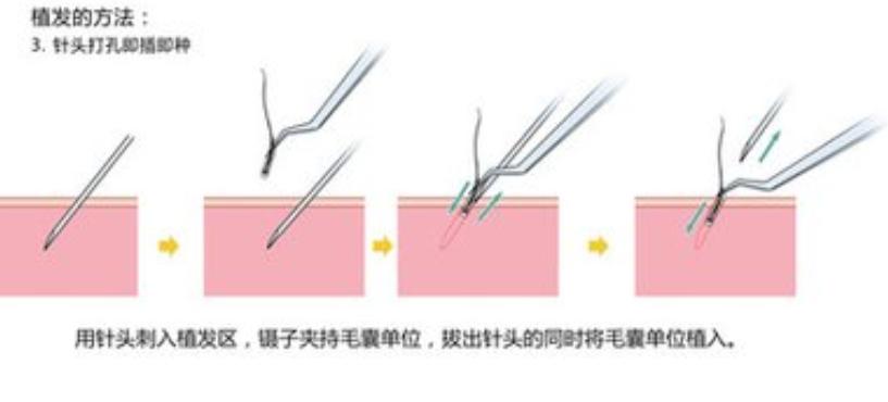 深圳植发大概得多少钱?