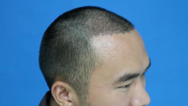 沈阳植发手术需要多少费用,花了2.5万在沈阳植发术后半月分享