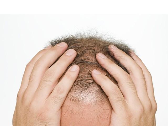 植发毛囊不够怎么办