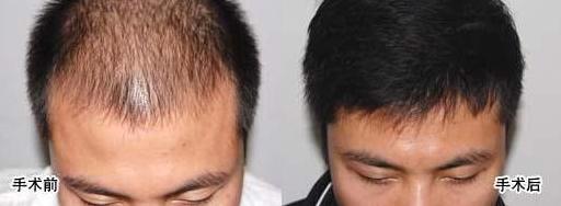 北京做植发手术贵不贵?价格如何计算?
