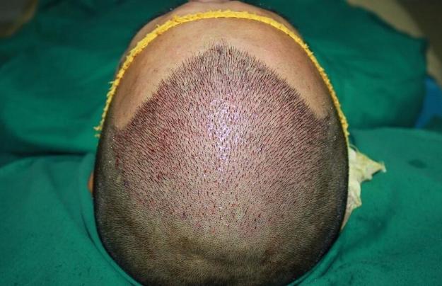 深圳植发一般需要多少钱呢?