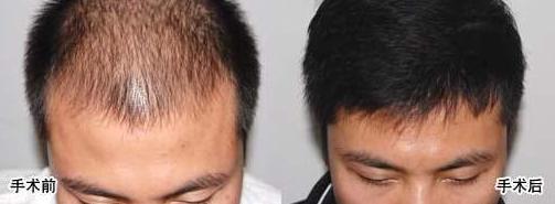 广州植发多少钱?