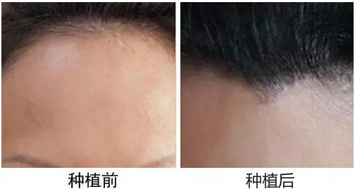 重庆有植发医院吗?重庆植发一般多少钱?