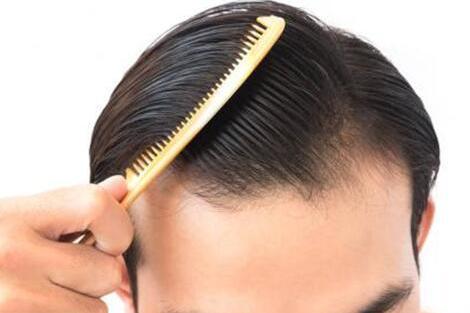 非那雄胺片治疗脱发副作用有哪些