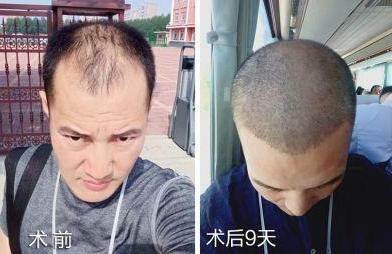 在深圳植发3500单位,看看我的植发效果怎么样啊