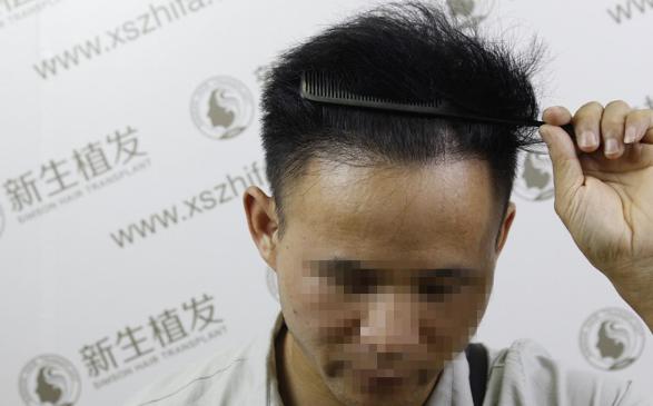 南京新生植发2000植发,手术一年前后效果怎么样?