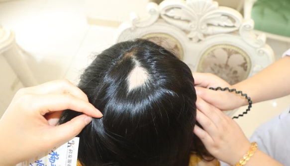 成都大麦微针植发1400单位,疤痕种植术后体验