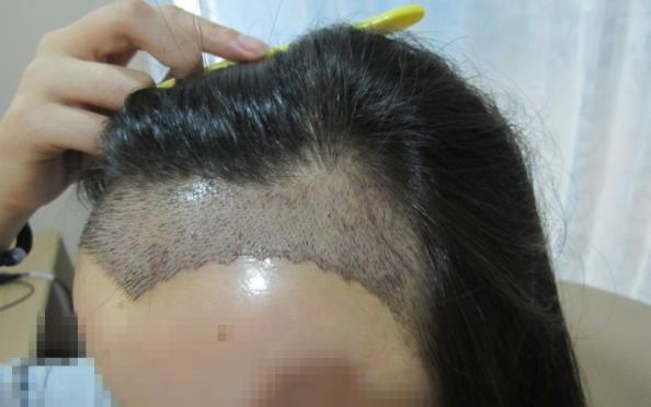 去成都雍禾进行无痕植发手术,女生植发发际线2200单位分享