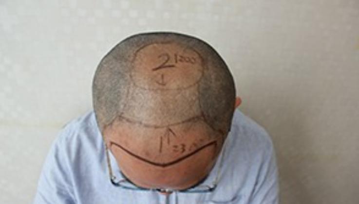 上海大麦微针植发3900个毛囊单位,大家来看看我的术后效果