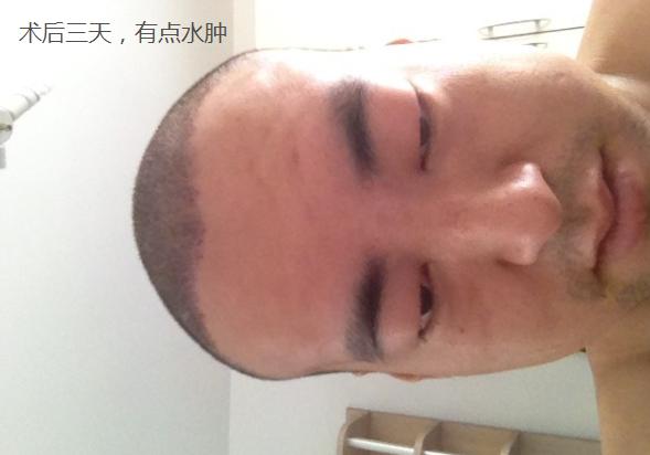 中美植发3100单位无痕植发,分享我的植发经历
