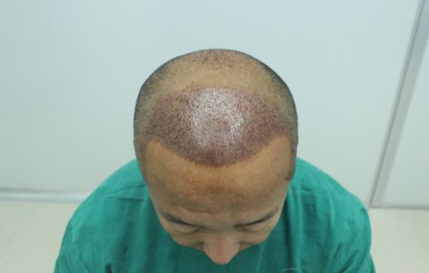 大麦微针植发3800单位真实经历分享,看看我的术后照片