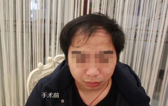 上海大麦微针植发3800单位,看看我的植发历程