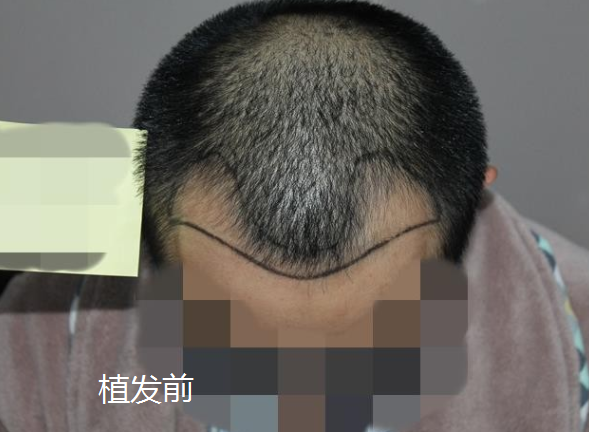 上海雍禾真实发友植发分享,看看我的植发实录