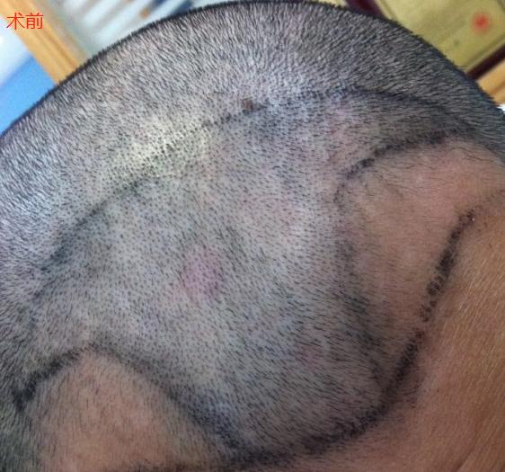 广州新发现植发2700单位,记录一下植发手术前后效果
