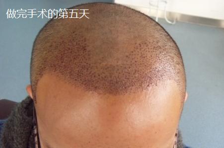 在西安做1800毛囊单位植发手术,期待术后蜕变