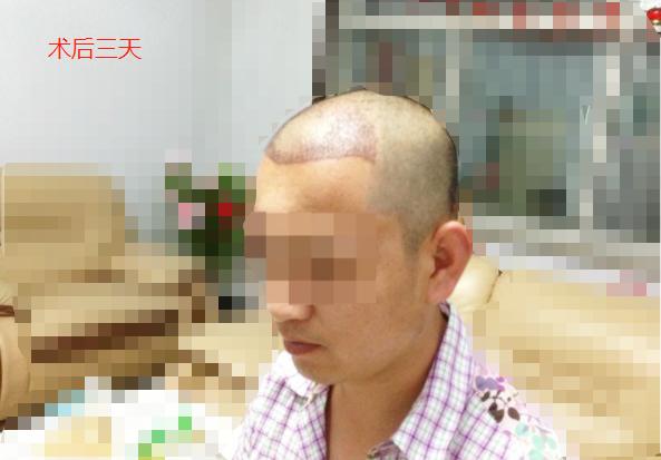 河北人在北京植发2500毛囊单位,看看术后效果怎么样
