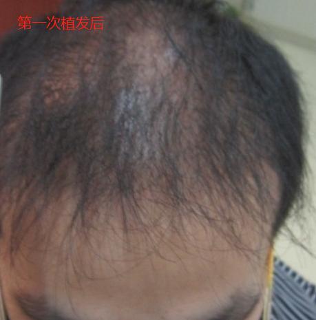 在北京植发2800单位,第二次植发手术期待术后效果