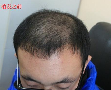 我推荐老公去植发,期待术后效果会让我们满意