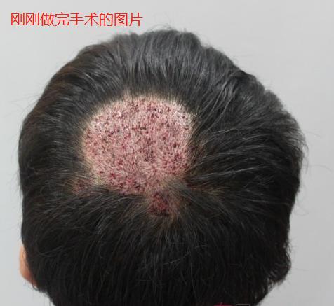 广州新发现疤痕植发,给大家分享我奇迹的术后效果