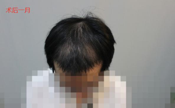 在新发现进行植发手术,向大家分享一下我的术后感受