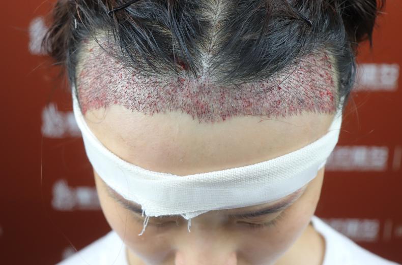 杭州医巢植发医院术后发友评价分享