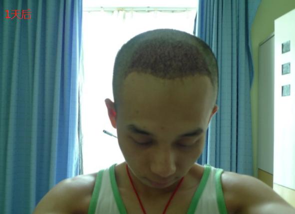 广州大麦微针植发2600单位,说说我植发后的小心得