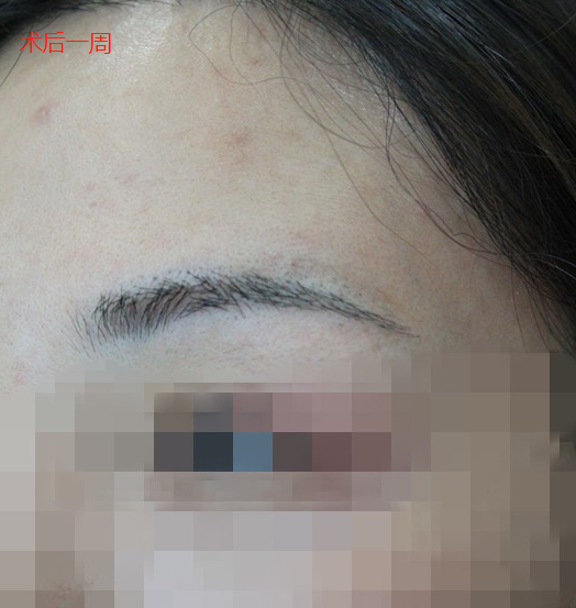 在广州新发现进行眉毛种植,术后效果让我惊喜