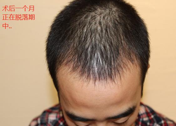 在合肥华美植发1300单位,看看发际线植发术后效果