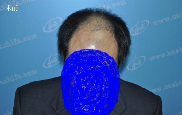 五级脱发植发经历,北京中美植发期待术后效果