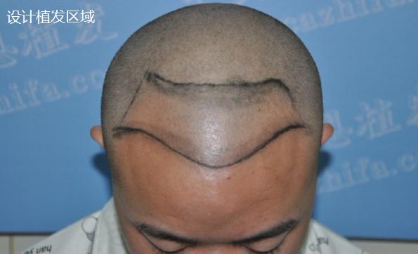 北京植发3000毛囊单位,和大家分享一下术后情况