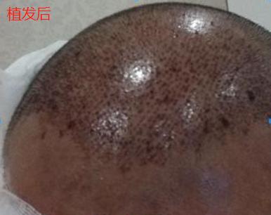 杭州大麦微针植发2300单位,我分享一下我的手术经历