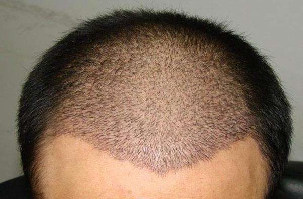 杭州植发需要多少钱