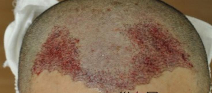 我在杭州时光植发机构,种头发2000多单位看看术后效果怎么样