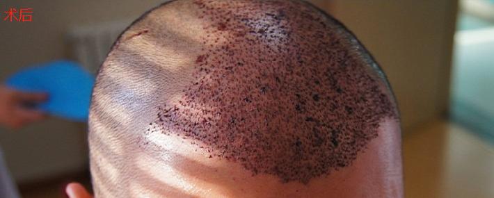 赶上植发优惠大麦微针植发3000单位,看看术后效果