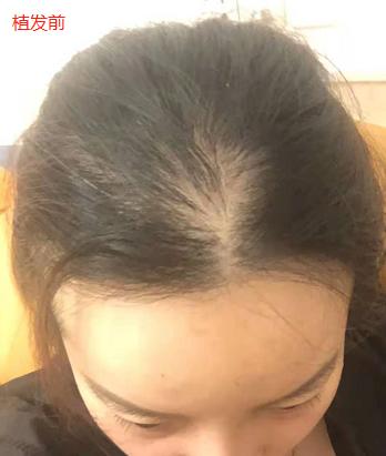 厦门雍禾植发2500单位毛囊,期待术后可以有更好的改变