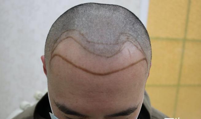 郑州大麦微针植发医院案例