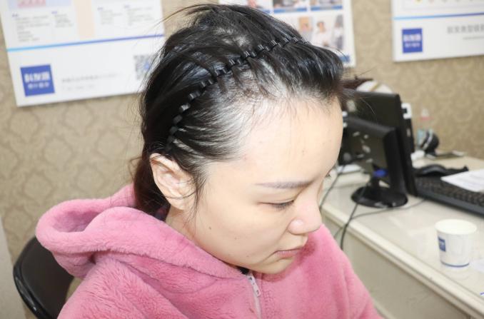 郑州植发价格表详细,附植发医院排名榜单及案例