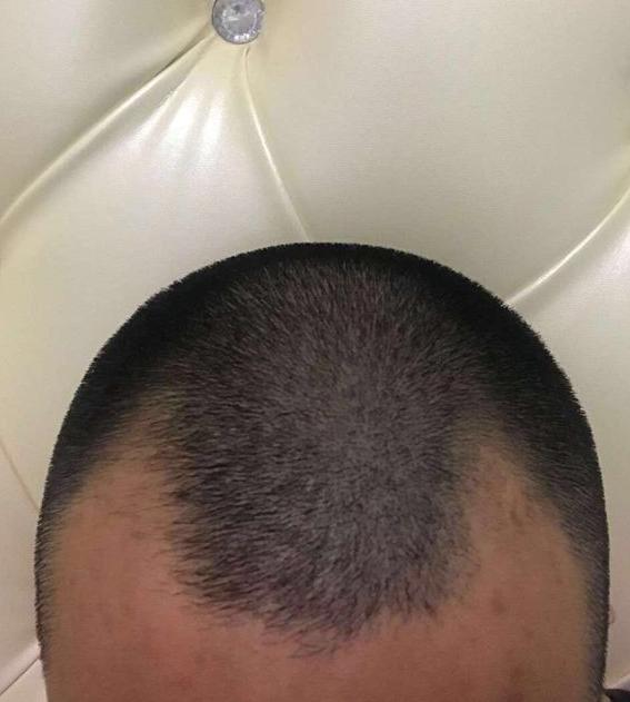 植发术前照片