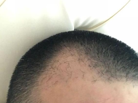植发两个月