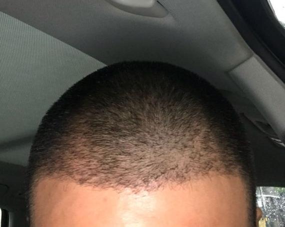 植发术后半年