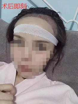 女生发际线植发1800单位,看看在南昌大麦微针植发后的恢复效果