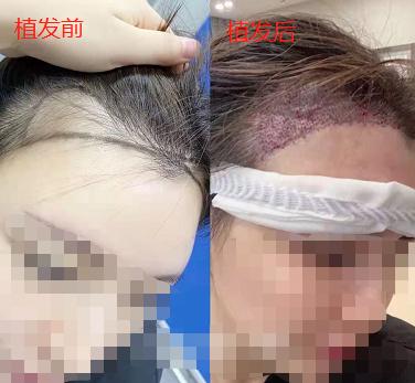 杭州发际线植发2200单位,一起进来看看植发后的效果