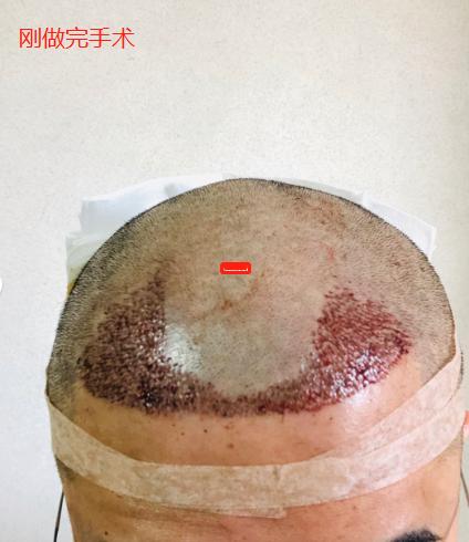 记录植发手术前前后后的恢复情况,和大家一起分享