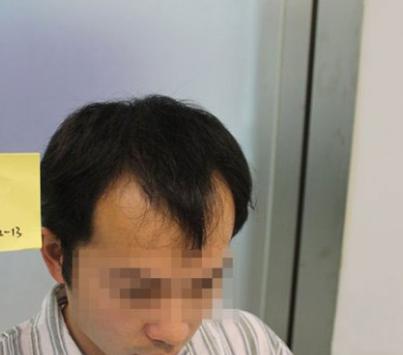 深圳雍禾植发前