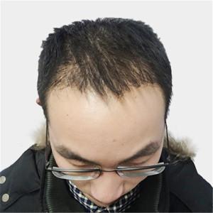 植发后3个月