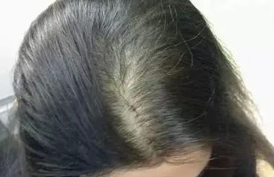 头顶发缝稀疏宽大用植发技术可以改善吗?有风险吗?