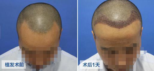邯郸市植发一个毛囊多少钱?术后效果看赵先生植发案例