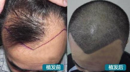 杭州植发一般需要多少钱?看当地靳先生在新发现植发案例