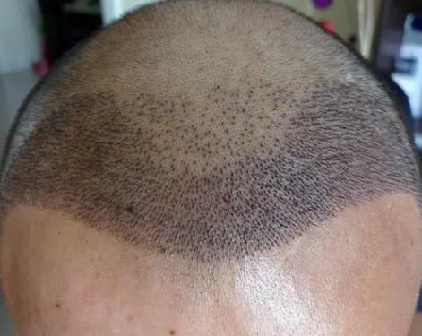 植发种头发疼不疼?植发后植发区有水肿怎么办?