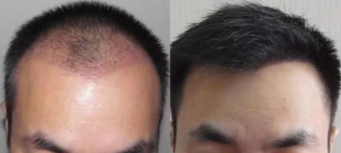 植发手术需要多久?植发术后效果恢复的自然吗?